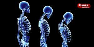 Osteoporoz'u olan kişiler dikkat!