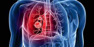 Akciğer Kanserinin 9 Belirtisine Dikkat