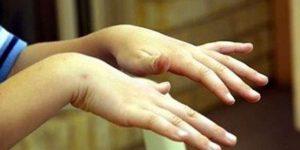 Ellerde titreme 'Parkinson hastalığının habercisi olabilir