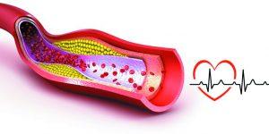 Kolesterol yüksekliği nedir? Zararları nelerdir