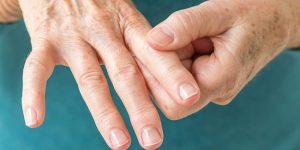 İltihaplı Eklem Romatizması Romatoid Artrit Nedir?
